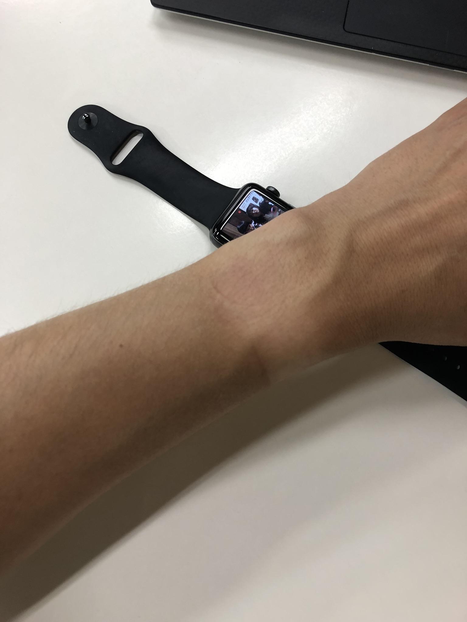 腕時計焼けが半端ない